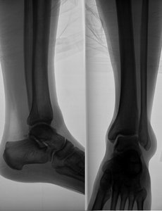 X-ray image of the leg