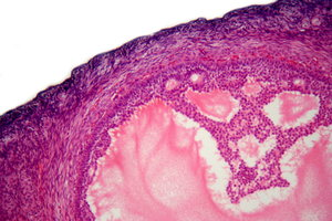 Human's ovarian follicle - mic