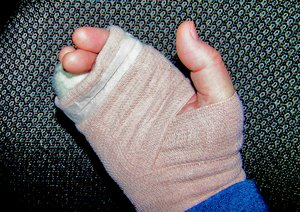 Broken Hand: A hand with the outside knuckles broken off. It is shown temporarily wrapped before the surgery to have pins installed, This is called a boxer's break.