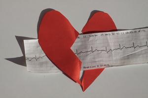 Heart - ECG